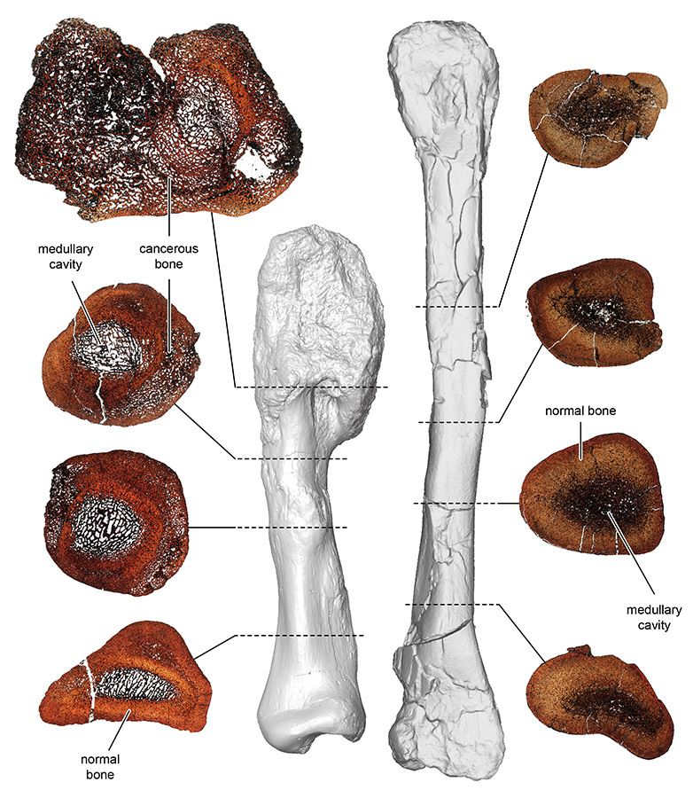 Comparison between thin sections of the cancerous shin bone (left) and normal shin bone of the horned dinosaur Centrosaurus apertus. The fossils were thin sectioned to compare the bone microstructure and properly diagnose the osteosarcoma. Credit: Royal Ontario Museum.© Royal Ontario Museum/McMaster University