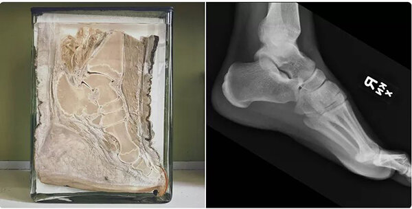 A cross-section of an elephant's foot alongside a human foot x-ray, revealing a striking skeletal likeness. Credit: University of Queensland