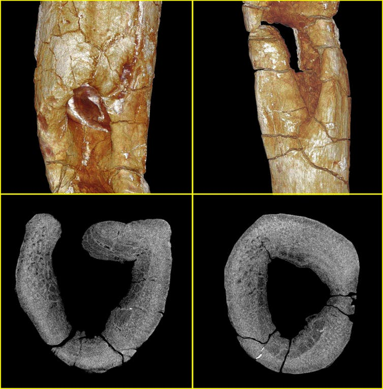 Micro-computed tomography allowed us to produce surface renderings of the fossil in 3D (top row) and 2D X-ray slices through the rib (bottom row). These show areas of cellular reorganisation, bone destruction and bone formation indicative of ostemyelitis. Patrick Randolph-Quinney, UCLan