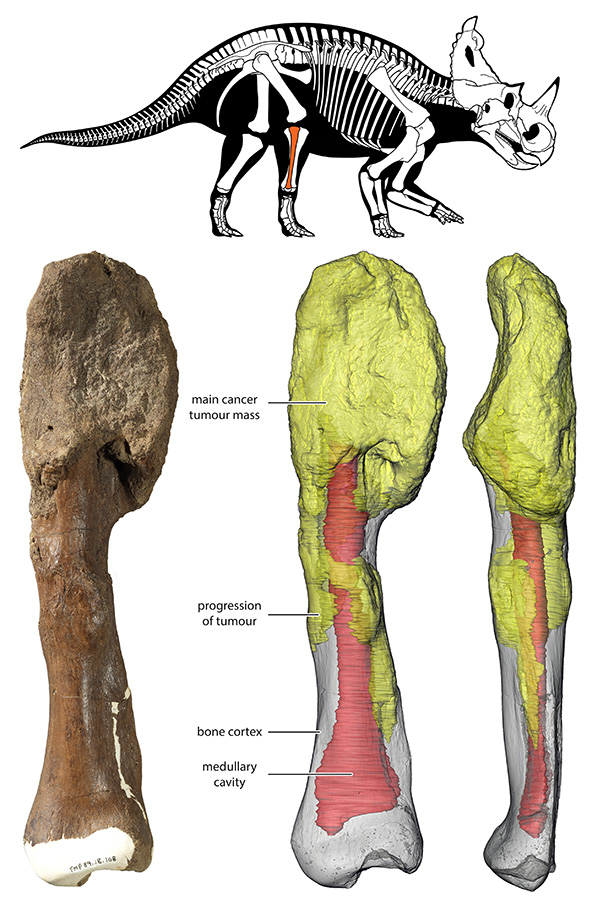 The main tumour mass is at the top of the bone, and can be seen on the 3D reconstruction in yellow; red gray is the normal bone and red denotes the medullary cavity. Credit: Centrosaurus diagram by Danielle Dufault. Courtesy of Royal Ontario Museum.© Royal Ontario Museum/McMaster University